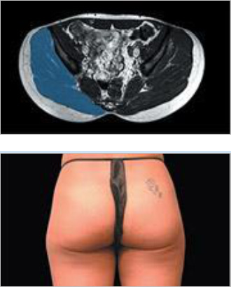 EMsculpt Fat Reduction Therapy