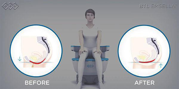 Emsella Urinary Incontinence Treatment