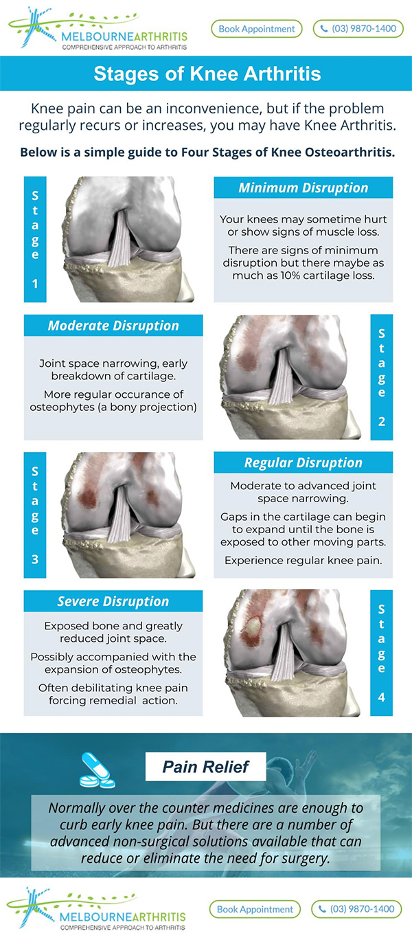 Four Stages of Knee Arthritis